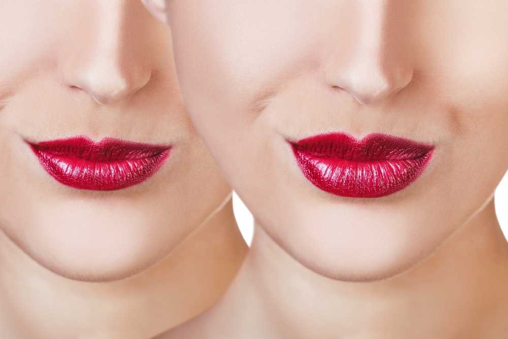 Lips before and after a lip filler procedure