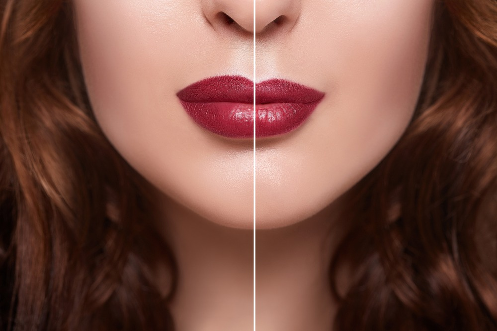 Lip fillers and lip augmentation London
